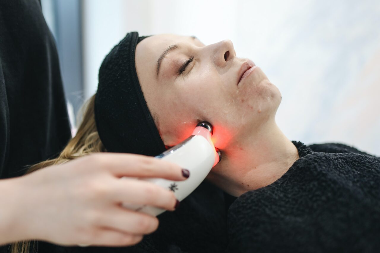 emoving facial spots by laser